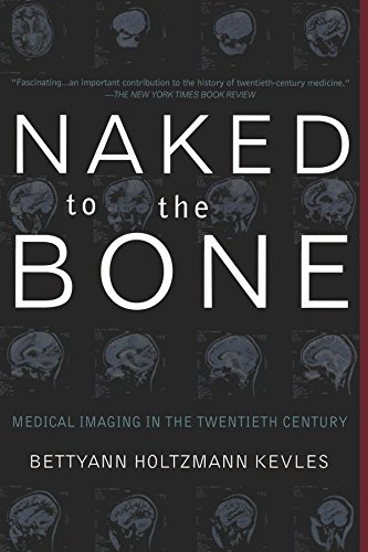 Naked To The Bone: Medical Imaging In The Twentieth - Naked Ray Ray