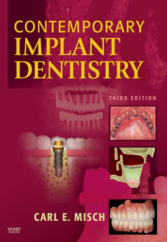 ARABIC-Contemporary Implant Dentistry: Arabic Bilingual Edition