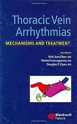 Thoracic Vein Arrhythmias: Mechanisms and Treatment