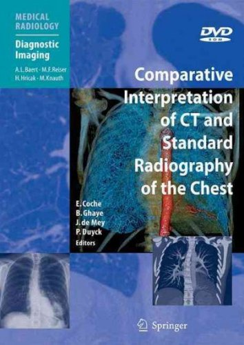 Download Comparative Interpretation of CT and Standard Radiography of the Chest PDF
