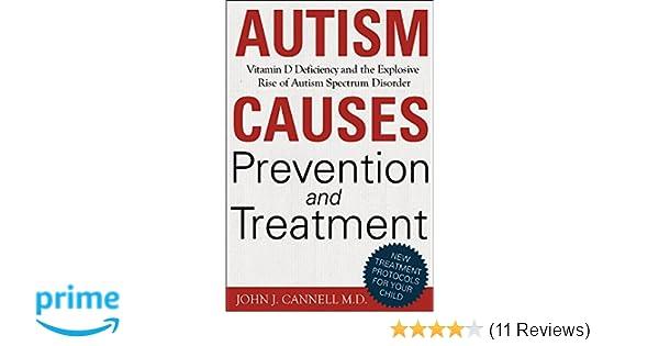 af883336a23 Autism Causes