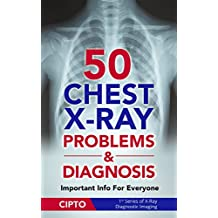 50 Chest X-Ray Problems & Diagnosis: Important Info For Everyone (X-Ray Diagnostic Imaging Book 1)