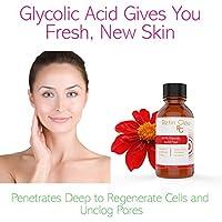 Vitamin C & Kojic Acid Gel Peel Including After Peel Neutralizer Facial Peel Contains 15% Vitamin C 10% Glycolic Acid 20% Lactic Acid. Perfect Mild Strength Chemical Peel Light Peeling No Downtime