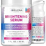Best Dark Spot Remover Creams - Dark Spot Remover for Face - Brightening Serum Review