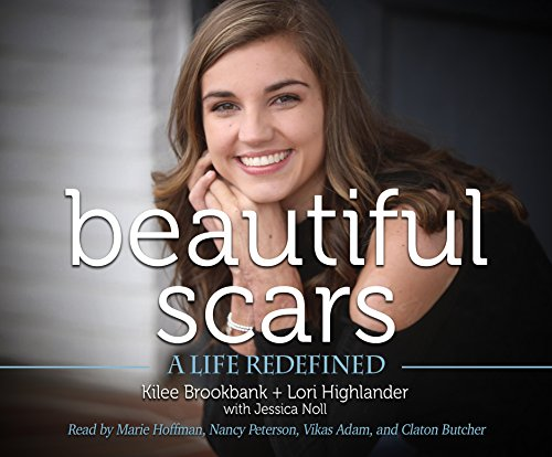 Beautiful Scars: A Life Redefined by Black Hills Audiobooks on Dreamscape Audio