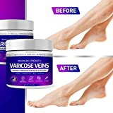 Varicose Veins Cream, Varicose Vein & Soothing