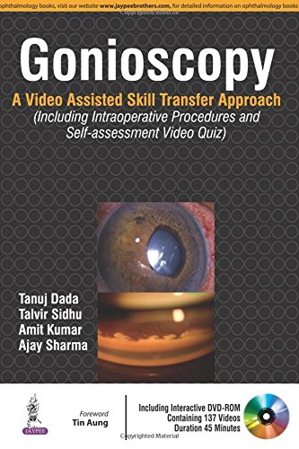 Gonioscopy: A Video Assisted Skill Transfer Approach (Including Intraoperative Procedures and Self-assessment Video Quiz)