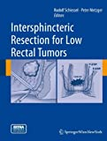 Intersphincteric Resection for Low Rectal Tumors