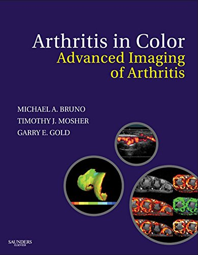 Download Arthritis in Color: Advanced Imaging of Arthritis Pdf