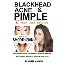Blackheads, Acne & Pimple: Blackheads, Acne, Pimple home remedies & Treatment Book