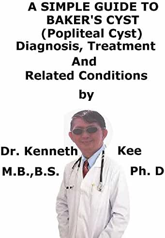 A  Simple  Guide  To  Baker's Cyst, (Popliteal Cyst)  Diagnosis, Treatment  And  Related Conditions (A Simple Guide to Medical Conditions)