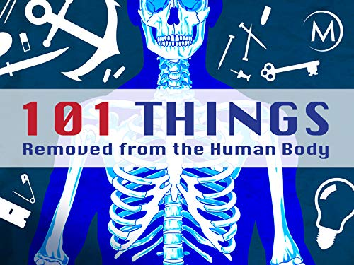 101 Things Removed from the Human Body - Season 1