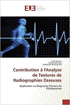 Contribution à l'Analyse de Textures de Radiographies Osseuses: Application au Diagnostic Précoce de l'Ostéoporose (Omn.Univ.Europ.) (French Edition)
