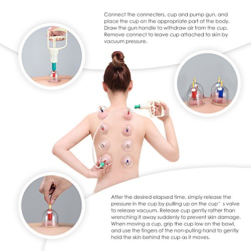 At Home Cupping Therapy: Chinese Cupping Therapy Set By DigHealth, 12 Vacuum Air