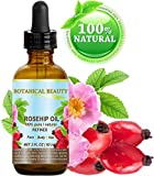 Rosehip Oil for Sunburn ROSEHIP OIL 100% Pure / Natural /Refined / Undiluted for Face, Body, Hair and Nail Care. 2 Fl.oz.- 60 ml.