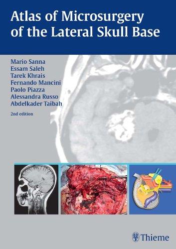 Atlas of Microsurgery of the Lateral Skull Base (2nd 2007) [Sanna, Saleh, Khrais, Mancini, Piazza, Russo & Taibah]