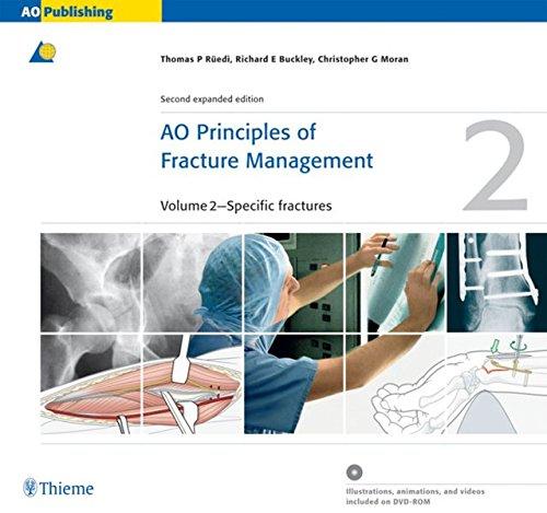 AO Principles of Fracture Management: Vol. 1: Principles,