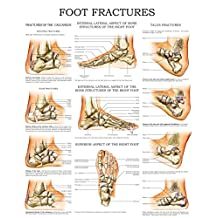Foot fractures - Quick Reference Chart: Full illustrated