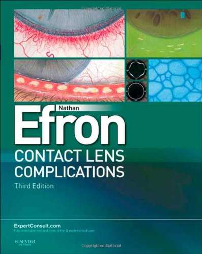 Contact Lens Complications: Expert Consult - Online and Print, 3e