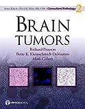 Brain Tumors (Consultant Pathology)