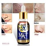 20% Mandelic Acid & Vitamin E SHILLS Anti Acne & Scars Face Serum For Face Nose. Topical Natural & Organic.Remove Dark Circle,Black heads,Fine lines, wrinkle-Dermatological Sun Corrector (1 Fl.Oz)