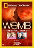 In the Womb: Identical Twins