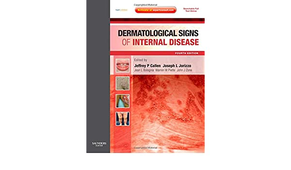 Dermatological Signs Of Internal Disease Expert Consult Online