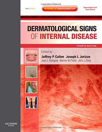 Dermatological Signs of Internal Disease: Expert Consult - Online and Print, 4e