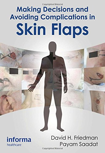 (Making Decisions and Avoiding Complications in Skin Flaps )