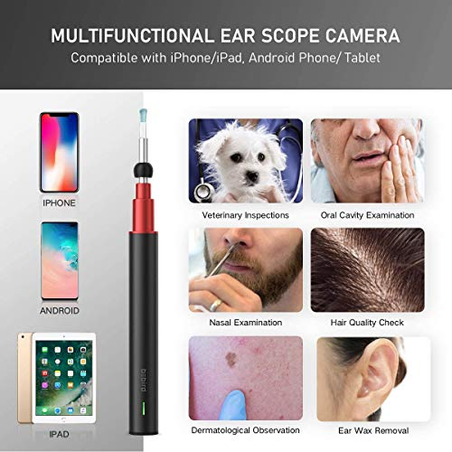 Ultra-Slim Digital Otoscope, Smart Visual Ear Cleaner with 1080P HD Digital Endoscope for Earwax Cleaning, Ear Scope Camera with Earwax Removal Tool for Adult Children & Veterinary (A-Black)