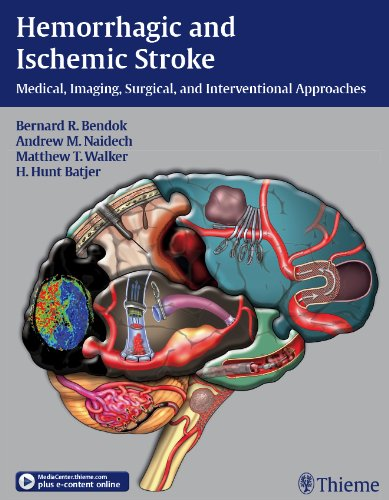 Hemorrhagic and Ischemic Stroke Medical, Imaging, Surgical, and Interventional Approaches (1st 2011) [Bendok, Naidech, Walker & Batjer]