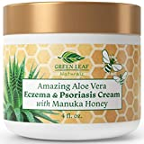 Amazing Aloe Vera Eczema and Psoriasis Cream with Manuka Honey by Green Leaf Naturals - 4 oz