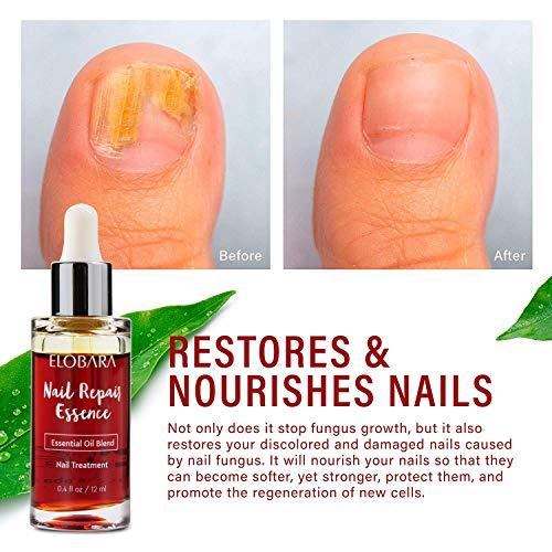 Nail Fungus Repair, Maximum Strength Fungal Toenail Solution, Nail Repair, Restores Healthy Appearance of Discolored & Damaged Nails