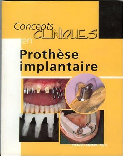 Téléchargement Concepts cliniques en prothèse implantaire epub, pdf