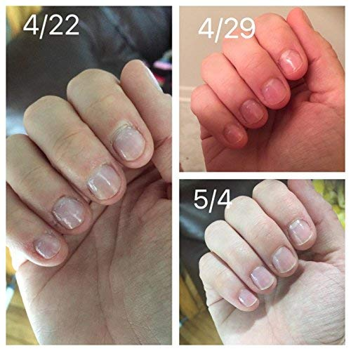 Nail Biting Artinya: PERFANAILS Stop Nail-Biting, Thumb Sucking Treatment For