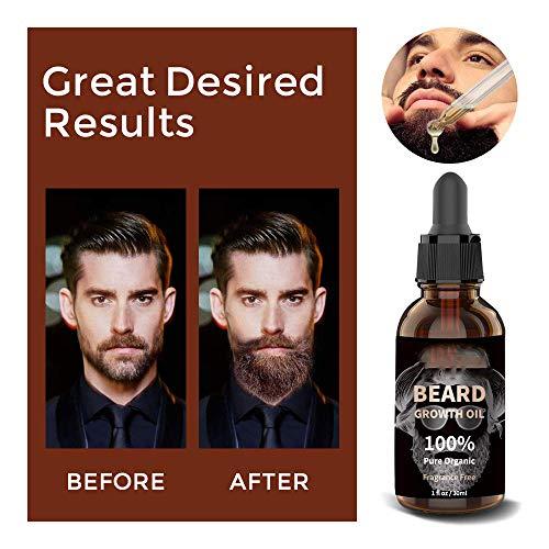 Beard Growth Kit, Derma Roller with Beard Growth Oil Serum, Beard Balm for Men, Facial Hair Growth Kit with Hair Comb, Titanium Beard Roller Kit