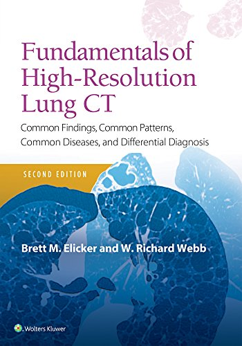 - Fundamentals of High-Resolution Lung CT: Common Findings, Common Patterns, Common Diseases and Differential Diagnosis (Pocket Notebook)