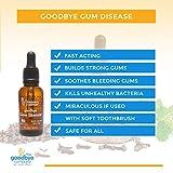 Goodbye Gum Disease - Organic Home Remedy for