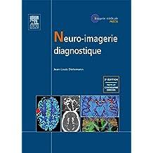 Neuro-imagerie diagnostique (French Edition)