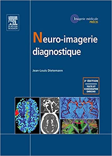 ^OFFLINE^ Neuro-imagerie Diagnostique (French Edition). needs years client Social money started