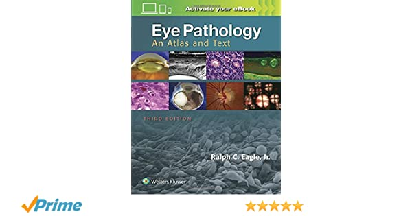 Eye pathology : an atlas and text