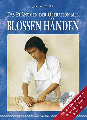 Das Phänomen der Operation mit blossen Händen, m. DVD