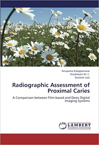 Radiographic Assessment of Proximal Caries: A Comparison between Film-based and Dexis Digital Imaging Systems Paperback – October 5, 2012