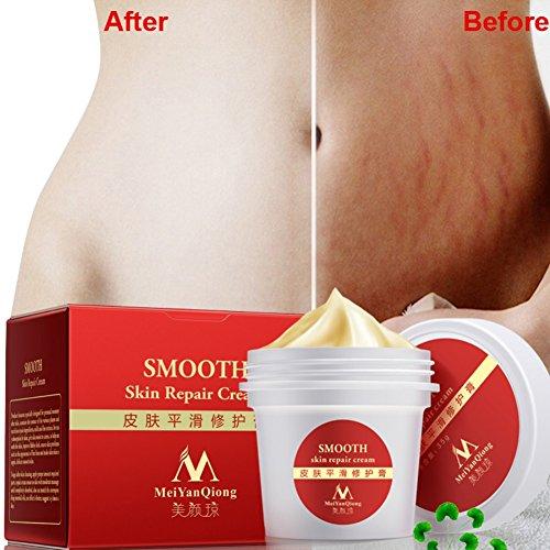 Skin Care For Pregnant - 5