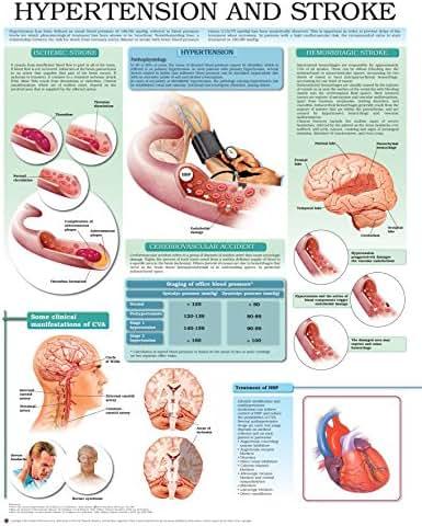 Hypertension and stroke e chart: Full illustrated