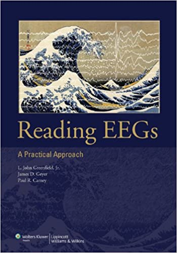 Amazon reading eegs a practical approach ebook l john reading eegs a practical approach 1st edition kindle edition fandeluxe Image collections