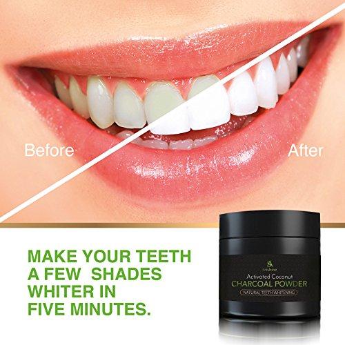 Teeth Whitening Charcoal Powder Natural - Activated Charcoal Teeth Whitening Kit – Teeth Whitener 30g