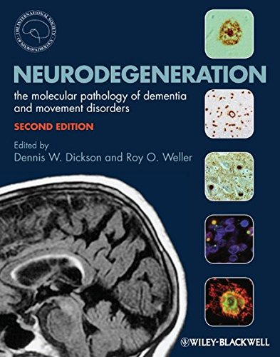 Neurodegeneration  The Molecular Pathology Of Dementia And Movement Disorders