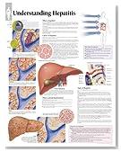 Understanding Hepatitis chart: Wall Chart