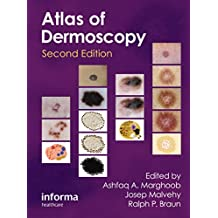 An Atlas of Dermoscopy